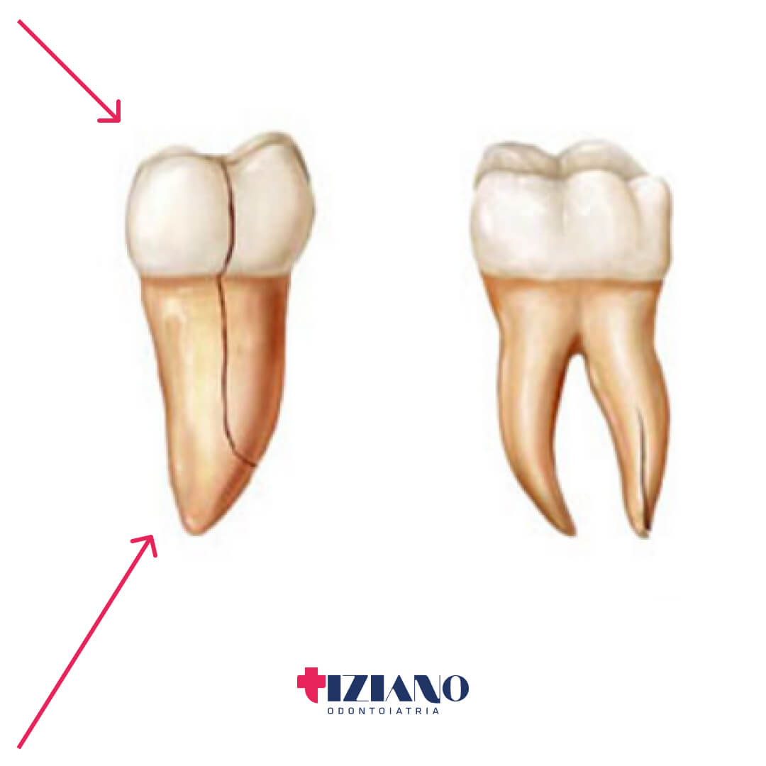 urgenza dentistica radice corona
